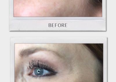 Tulsa Botox Botox BA Revitalize20210823 0005
