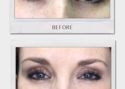 Tulsa Botox Botox BA Revitalize20210823 0006