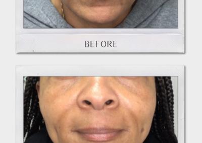 Tulsa Botox Cheek BA Revitalize20210823 0001