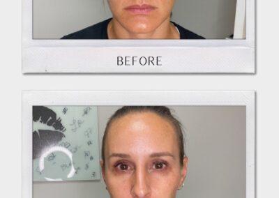 Tulsa Botox Cheek BA Revitalize20210823 0003