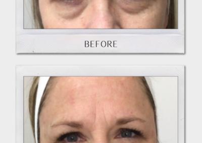 Tulsa Botox Cool Peel BA Revitalize20210823 0001