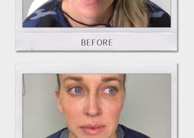 Tulsa Botox Cool Peel BA Revitalize20210823 0002