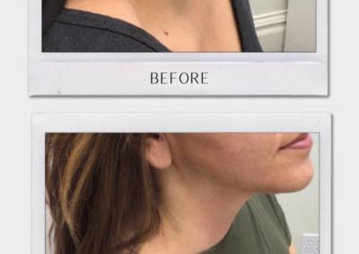 Tulsa Botox Forma BA Revitalize