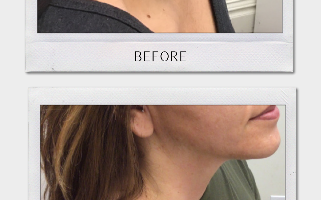 Botox Tulsa | Get A Free Personalized Consultation!