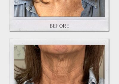 Tulsa Botox Fractora BA Revitalize