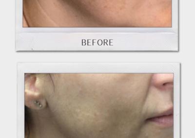 Tulsa Botox Hyperpigmentation BA Revitalize20210823 0002
