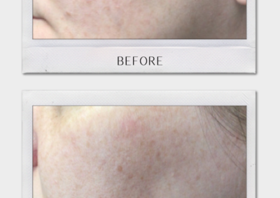 Tulsa Botox Hyperpigmentation BA Revitalize20210823 0003