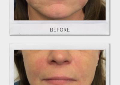 Tulsa Botox Juvederm BA Revitalize20210823 0001