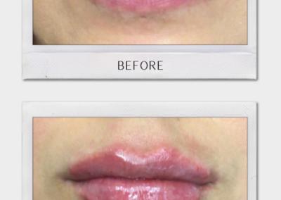 Tulsa Botox Juvederm BA Revitalize20210823 0002