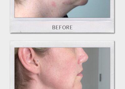 Tulsa Botox Kybella BA Revitalize