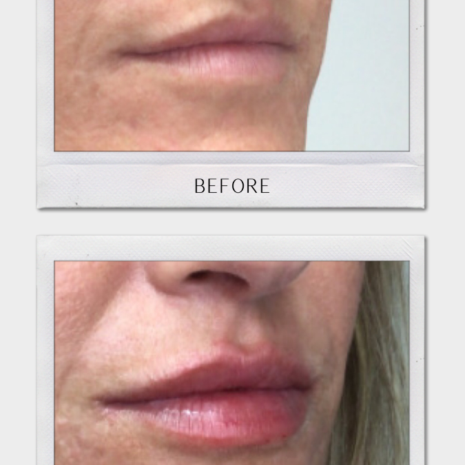 Top Tulsa Botox | Get On-Time Services & More!