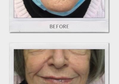 Tulsa Botox LipFiller BA Revitalize20210823 0002