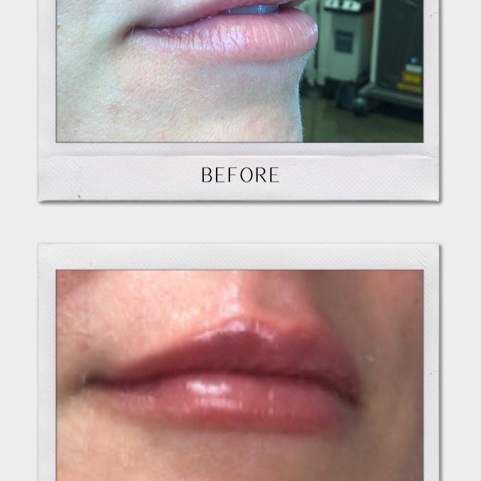 Tulsa Botox  | How To Obtain The Look You Desire?