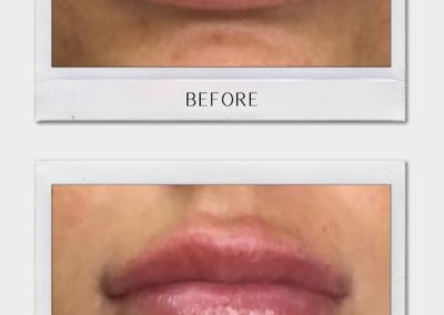 Tulsa Botox LipFiller BA Revitalize20210823 0005