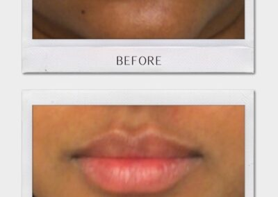 Tulsa Botox LipFiller BA Revitalize20210823 0006
